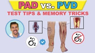 Download PAD vs PVI cartoon animation & memory tricks peripheral arterial disease pathophysiology, signs Video