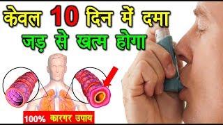 Download दमा (अस्थमा) केवल 10 दिन में जड़ से ख़त्म 100% असरदार नुस्खा - Cure Asthma Permanently in 10 Days Video