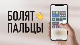 Download Болят пальцы от iPhone X / Fingergate? Video