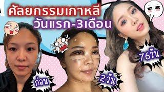 Download บทสรุปศัลยกรรมเกาหลีของแย้! Reality 3 เดือนเต็ม Video