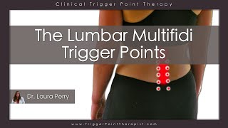 Download The Lumbar Multifidus Trigger Points Video