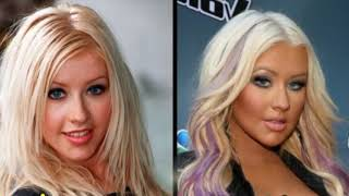 Download 49 Celebrities Before and After Plastic Surgery Video