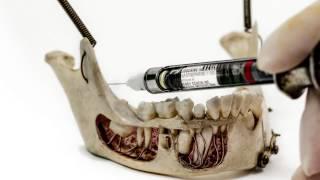 Download Children's Dental Injection Technique (Mandibular Block for Pediatric Patients at Tebo Dental) Video