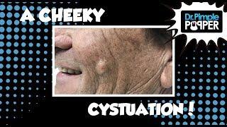 Download A Cheek Cystuation Video