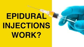 Download Epidural Injections for Back Pain and Sciatica - Cortisone Steroid Shots for Herniated Discs Video