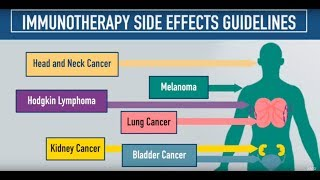 Download Immunotherapy Side Effects Guidelines Video