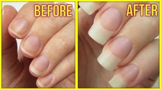 Download 5 Ways to Grow Your Nails FAST! Video