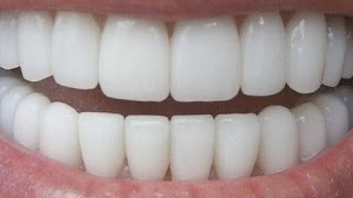 Download HOW TO HAVE NATURAL WHITE TEETH IN 3 MINUTES ( WORKS 100% ) Video