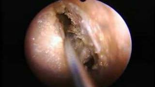 Download Anterior Ethmoid Dissection Video