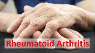 Download Rheumatoid Arthritis Solutions Video