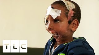 Download Boy has Jaw Ripped Off by Hyena | Body Bizarre Video