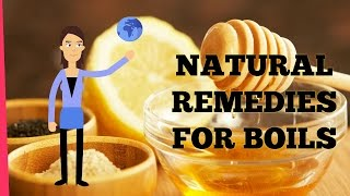 Download Natural Remedies for Boils that Really Work Video