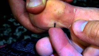 Download squeezing out a sea urchin needle Video