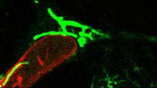 Download Newly discovered cytoskeleton helps cancer cells survive Video
