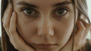 Download 얼굴 뾰루지 위치 분석, 여드름 위치가 의미하는 것은 무엇일까? Video