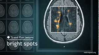 Download Multiple Sclerosis: Understanding Your MRI Video