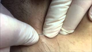Download Removing Ingrown Hairs During an Electrolysis Session Video