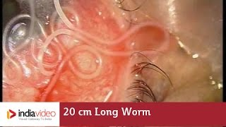 Download 20 cm Long Worm In The Human Eye, First Ever Recorded On Video | India Video Video