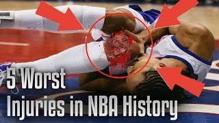 Download TOP 5 WORST NBA INJURIES EVER Video