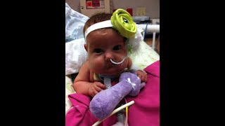 Download Feighlyn's Story - 2019 Omphalocele Awareness Video