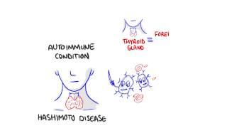Download Some facts about Hashimotos disease Video