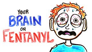 Download Your Brain On Fentanyl (FIXED) Video