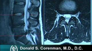Download How to Read a MRI of a Lumbar Herniated Disc | Lower Back Pain | Colorado Spine Surgeon Video