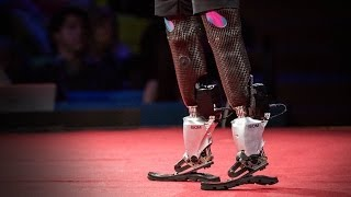 Download New bionics let us run, climb and dance | Hugh Herr Video