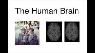 Download Extraordinary Variations of the Human Mind: Dan Geschwind: Our Brains: Life on a Continuum Video