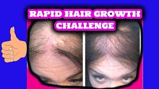 Download Thin and Bald Hair Growth Challenge | 3 Ingredients Video
