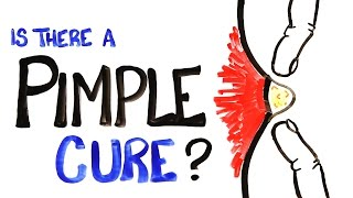 Download Is There A Pimple Cure? Video