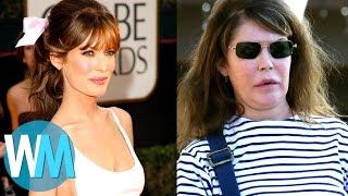 Download Top 10 Celebrities with TERRIBLE Plastic Surgery Video