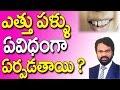 Download ఎత్తు పళ్ళు ఏ విధంగా ఏర్పడతాయి || Telugu Dental Tips I Telugu || DR RAOS DENTAL | Ettu Pallu Video