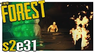 Download NEW CRAZY CAVE? | The Forest Gameplay S2E31 (Alpha v0.20) Video
