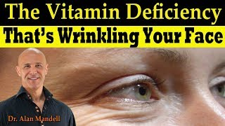 Download The Vitamin Deficiency That's Wrinkling Your Face (Linked to Low Bone Mass) - Dr Alan Mandell, DC Video