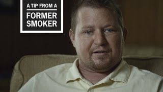 Download CDC: Tips from Former Smokers - Bill's Ad: Smoking and Diabetes Video