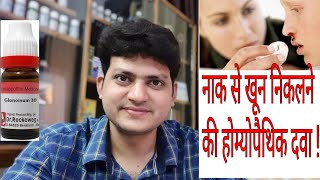 Download Nose Bleeding ! Homeopathic medicine for Nose Bleeding ? Nosebleed epistaxis !! Video