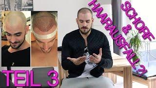Download FUE Haartransplantation – Schorf fast verheilt - 4 Wochen später Video