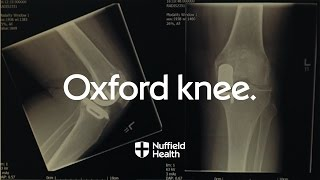 Download Innovation in Motion - 40 Years of the Oxford Knee | Nuffield Health Video