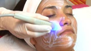 Download Radiofrecuencia Facial o Lifting sin cirugía Video