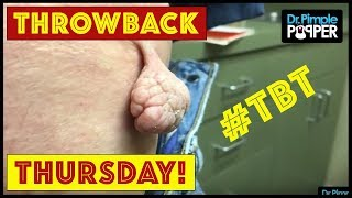 Download Reminiscing with Dr Pimple Popper TBT Part 12 Video