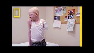 Download Attacked for Being Albino, Kids Receive Prosthetic Limbs and New Hope | National Geographic Video