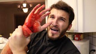 Download HE WOULDNT STOP BLEEDING!! Video