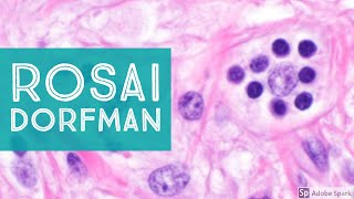 Download Extranodal Rosai-Dorfman Disease...Explained by a Pathologist Video