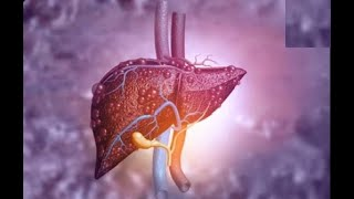 Download Fatty liver home remedies | Six foods that fight fatty liver Video