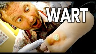 Download WORLDS LARGEST WART (Frozen With Liquid Nitrogen) | Dr. Paul Video