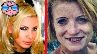 Download Top 10 Shocking Before And After Drug Use Photos Video