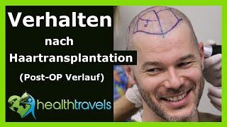 Download Verhalten nach Haartransplantation [Post-OP Verlauf] - Health Travels informiert Video