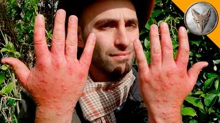 Download Worst Insect Stings EVER! Video