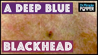 Download A blue-black, sticky blackhead extracted Video